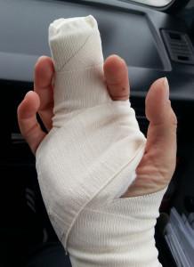 Finger mit Gipsschiene nach einem Geocacheunfall